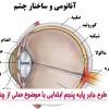 طرح جابر پایه پنجم ابتدایی با موضوع مدلی از چشم